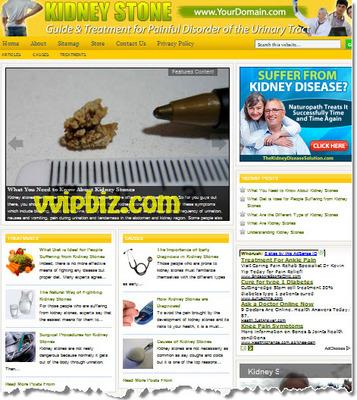 Product picture Kidney Stone Website PLR - WordPress Health Niche Blogs